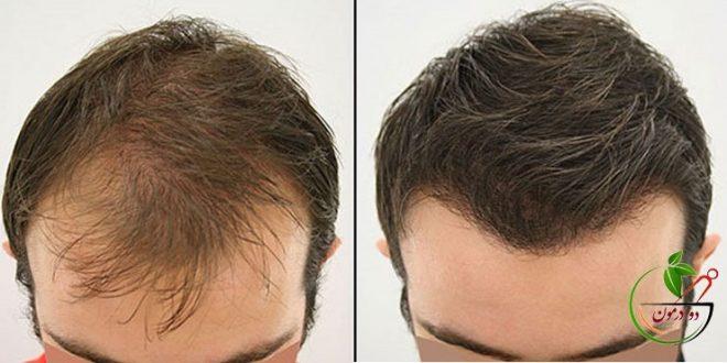 آنچه در مورد کاشت مو به شیوه جدید نیوگرافت باید بدانیم