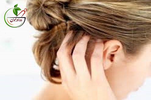 ریشه یابی مشکل خارش سر و درمان خانگی آن