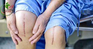 نحوه انجام عمل جراحی آرتروپلاستی یا تعویض مفصل زانو